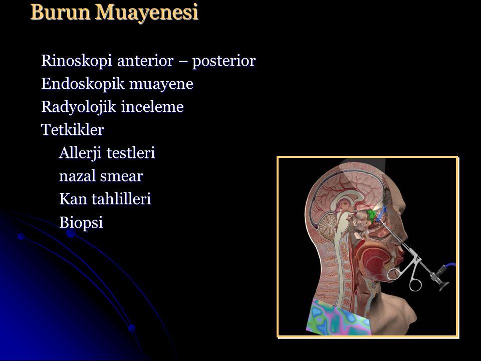 Burun Muayenesi Rinoskopi anterior – posterior Endoskopik muayene