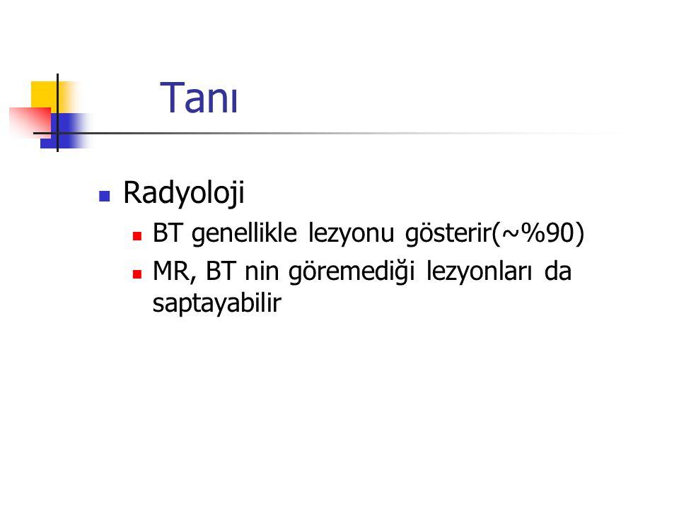 Tanı Radyoloji BT genellikle lezyonu gösterir(~%90)