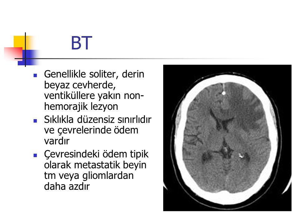 BT Genellikle soliter, derin beyaz cevherde, ventiküllere yakın non-hemorajik lezyon. Sıklıkla düzensiz sınırlıdır ve çevrelerinde ödem vardır.