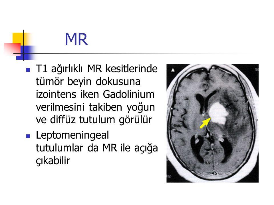 MR T1 ağırlıklı MR kesitlerinde tümör beyin dokusuna izointens iken Gadolinium verilmesini takiben yoğun ve diffüz tutulum görülür.