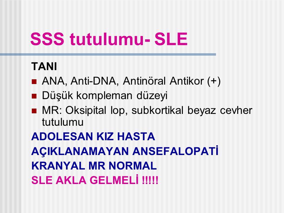 SSS tutulumu- SLE TANI ANA, Anti-DNA, Antinöral Antikor (+)