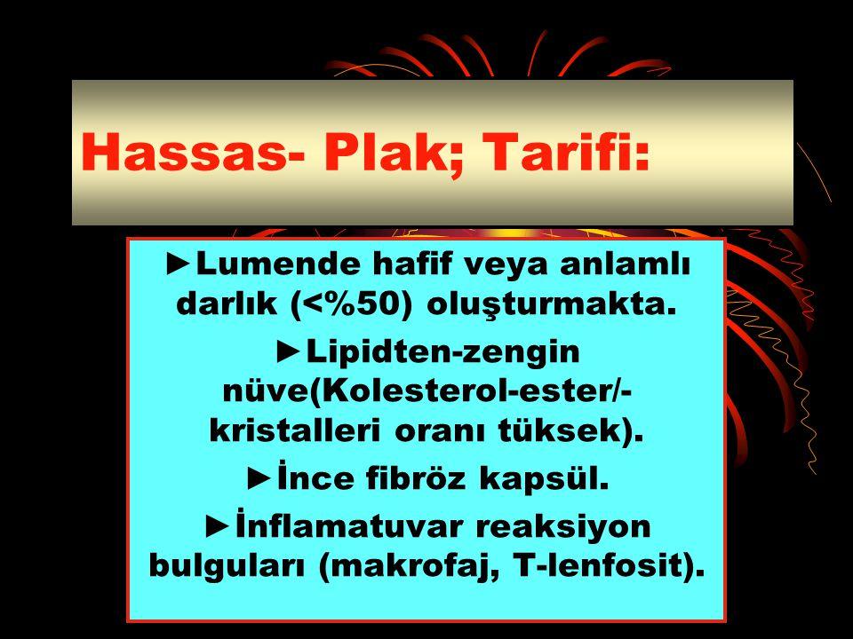 Hassas- Plak; Tarifi: ►Lumende hafif veya anlamlı darlık (<%50) oluşturmakta. ►Lipidten-zengin nüve(Kolesterol-ester/-kristalleri oranı tüksek).