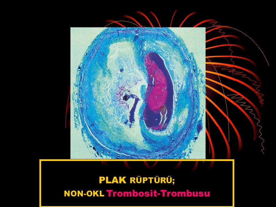 NON-OKL Trombosit-Trombusu