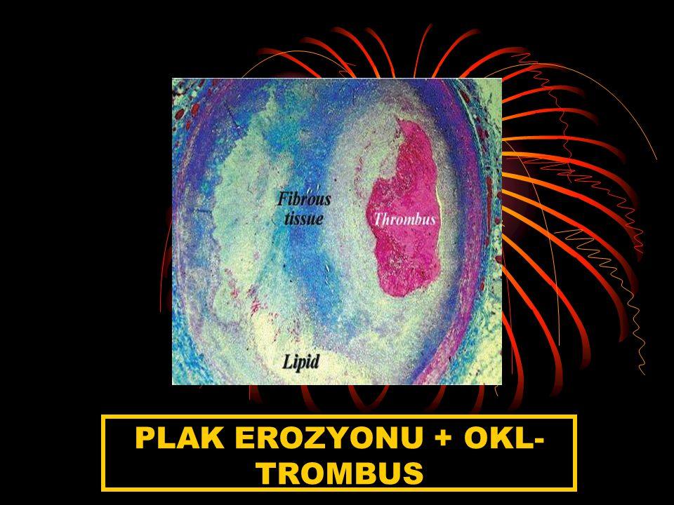 PLAK EROZYONU + OKL-TROMBUS