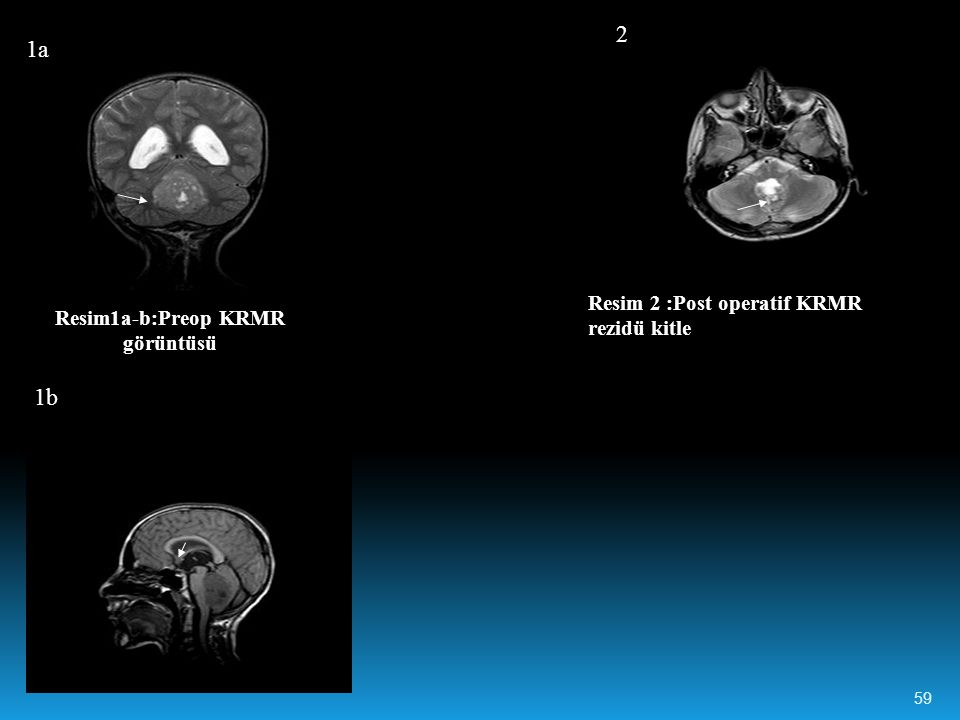 Resim1a-b:Preop KRMR görüntüsü