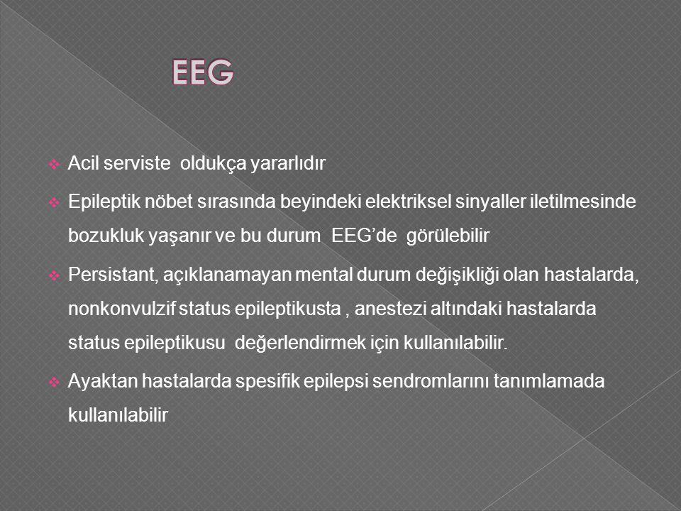 EEG Acil serviste oldukça yararlıdır