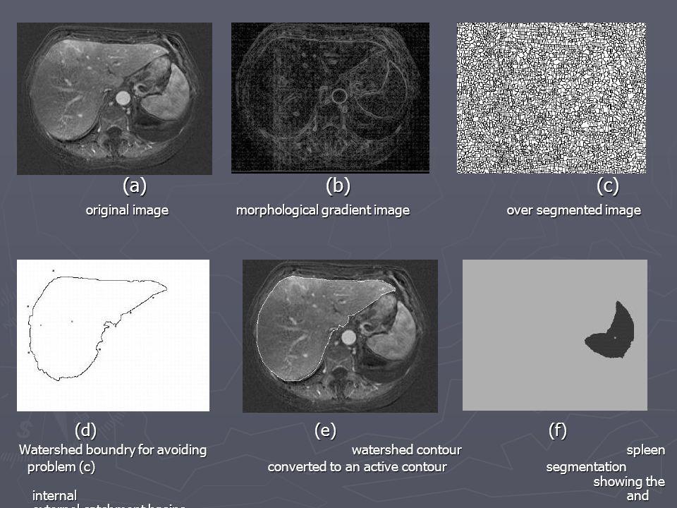 (a). (b). (c) original image. morphological gradient image