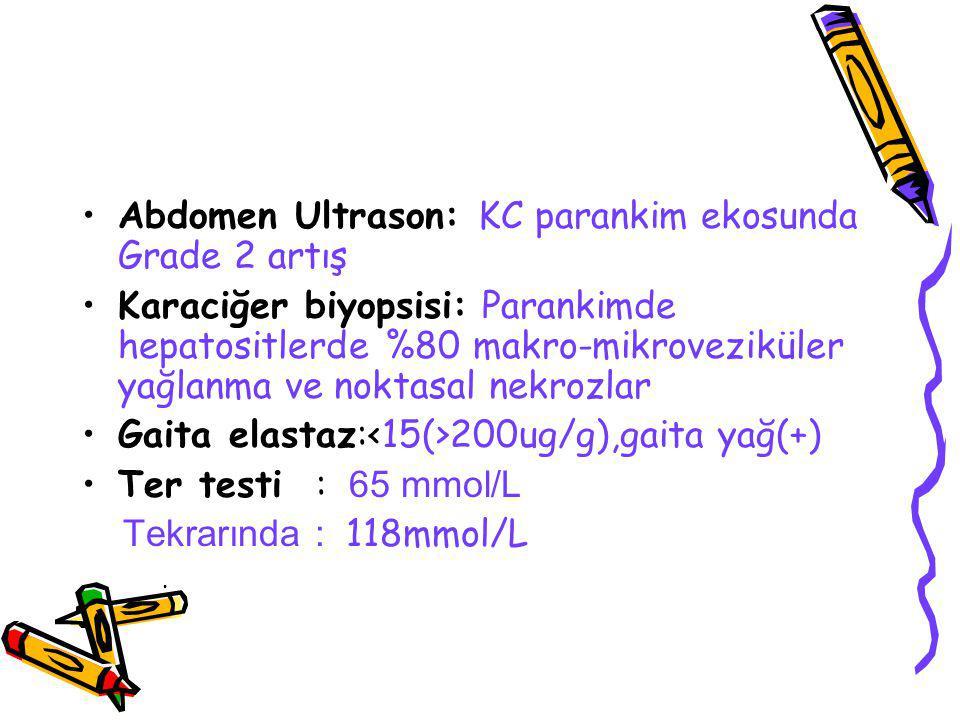Abdomen Ultrason: KC parankim ekosunda Grade 2 artış