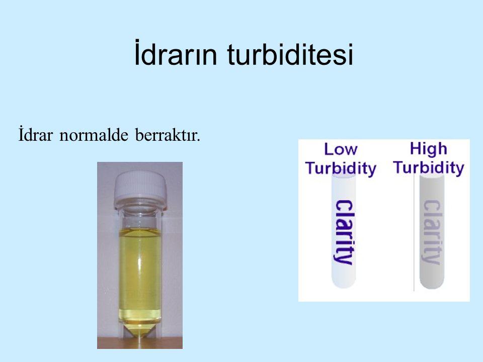 İdrarın turbiditesi İdrar normalde berraktır.