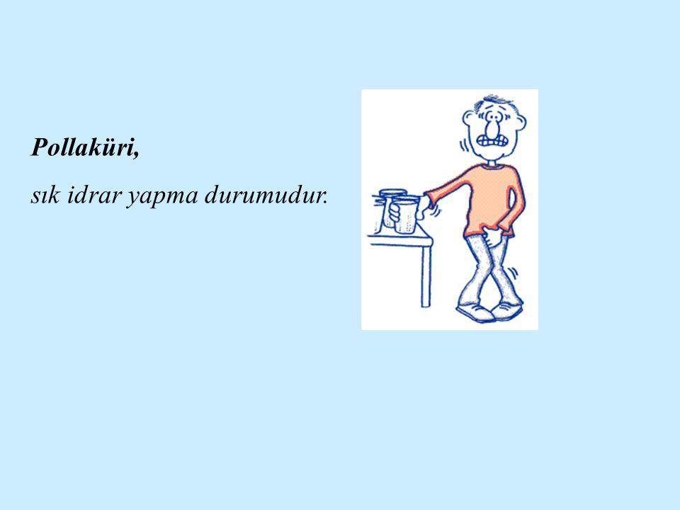 Pollaküri, sık idrar yapma durumudur.