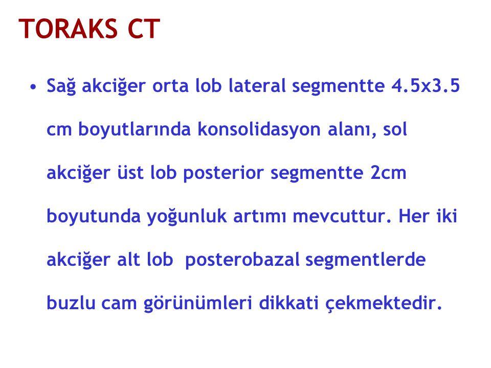 TORAKS CT