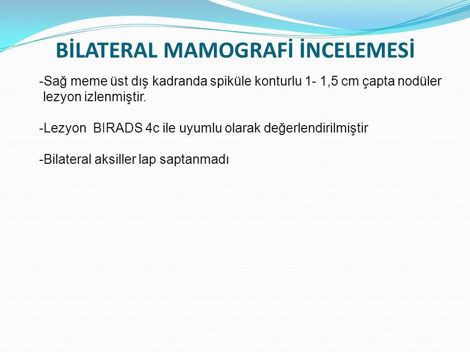 BİLATERAL MAMOGRAFİ İNCELEMESİ