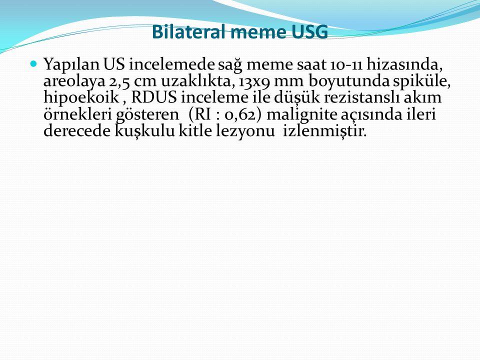Bilateral meme USG