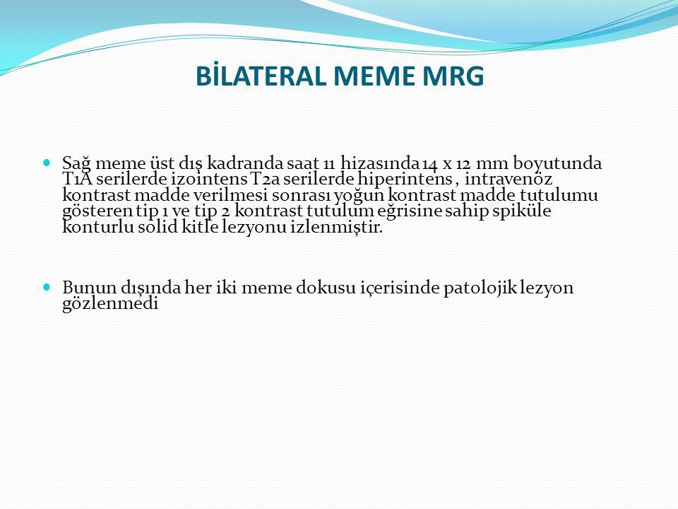 BİLATERAL MEME MRG