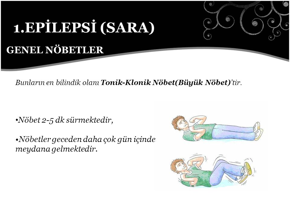 1.EPİLEPSİ (SARA) GENEL NÖBETLER Nöbet 2-5 dk sürmektedir,
