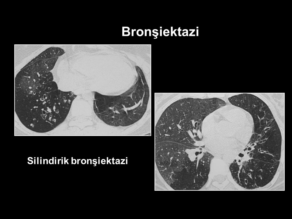 Bronşiektazi Silindirik bronşiektazi