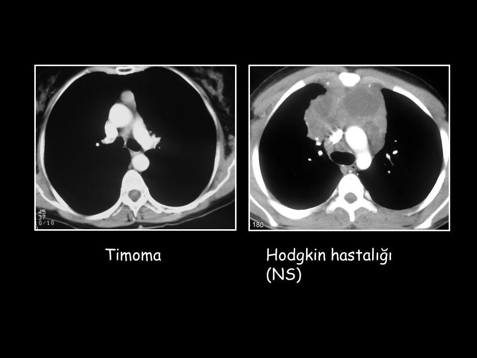 Timoma Hodgkin hastalığı (NS)