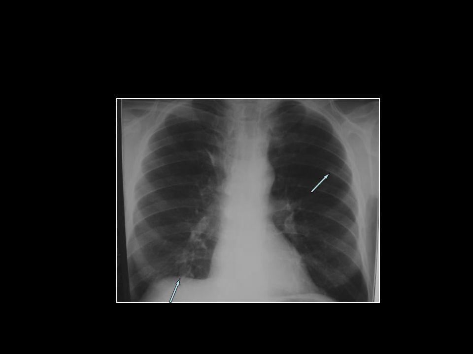 PA Akciğer ve Lateral Grafi