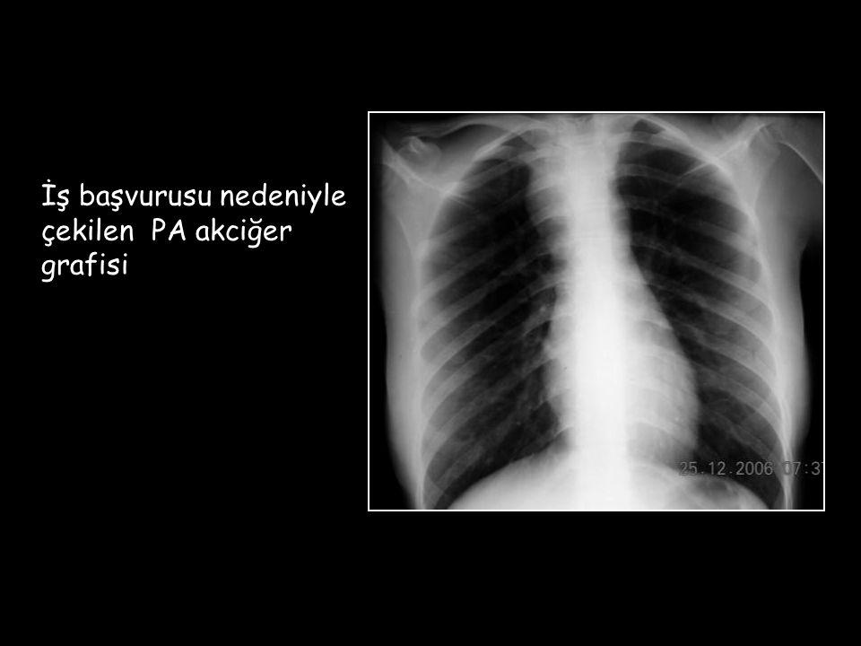 İş başvurusu nedeniyle çekilen PA akciğer grafisi