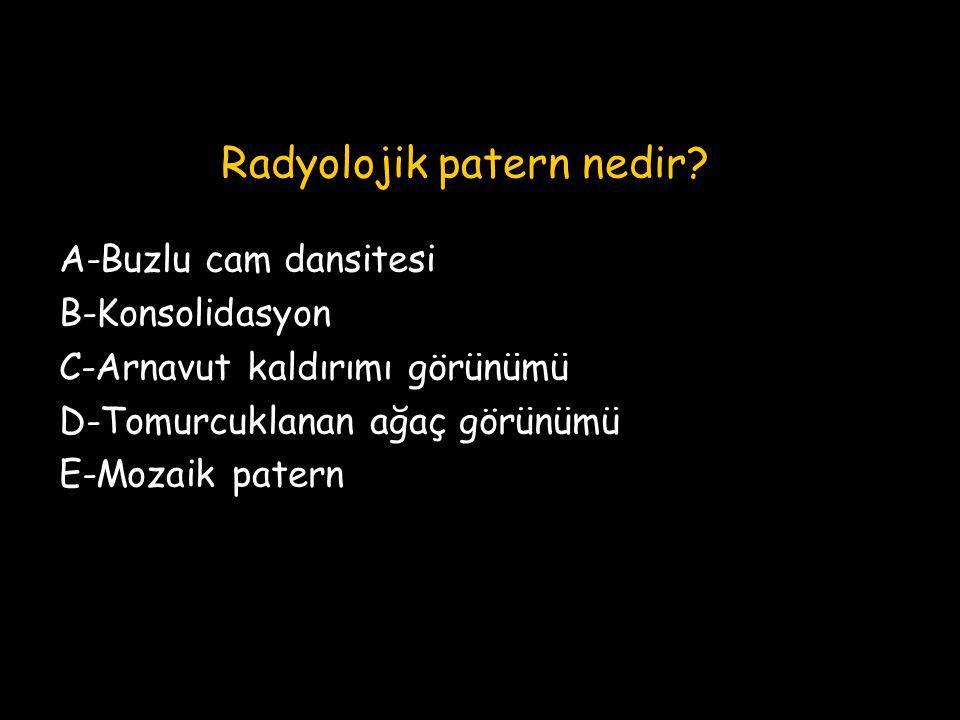 Radyolojik patern nedir