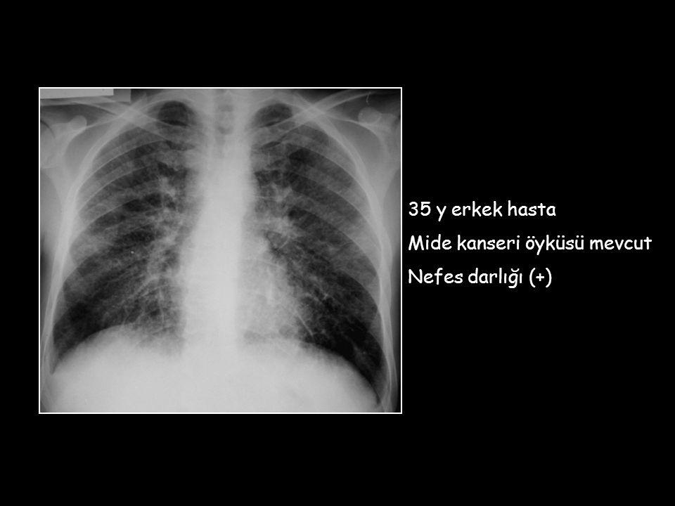 35 y erkek hasta Mide kanseri öyküsü mevcut Nefes darlığı (+)