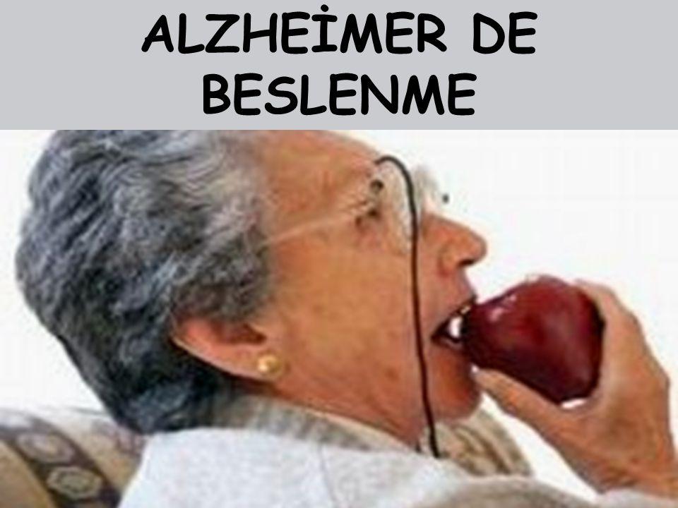 ALZHEİMER DE BESLENME