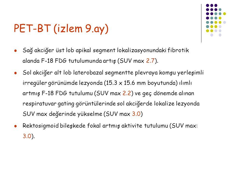 PET-BT (izlem 9.ay) Sağ akciğer üst lob apikal segment lokalizasyonundaki fibrotik alanda F-18 FDG tutulumunda artış (SUV max 2.7).