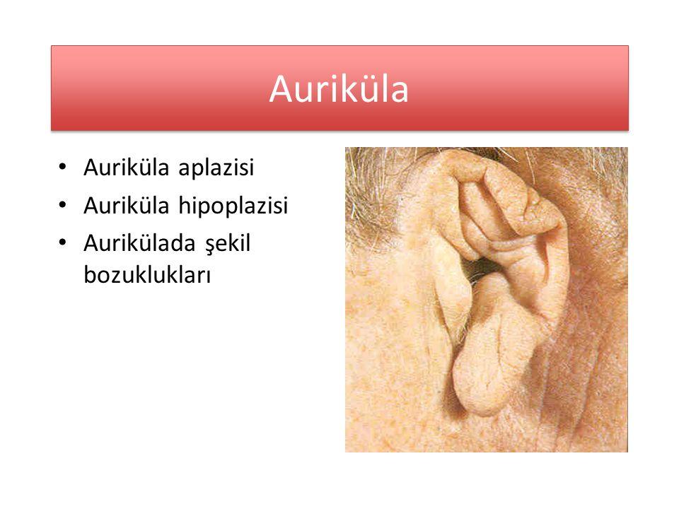 Auriküla Auriküla aplazisi Auriküla hipoplazisi