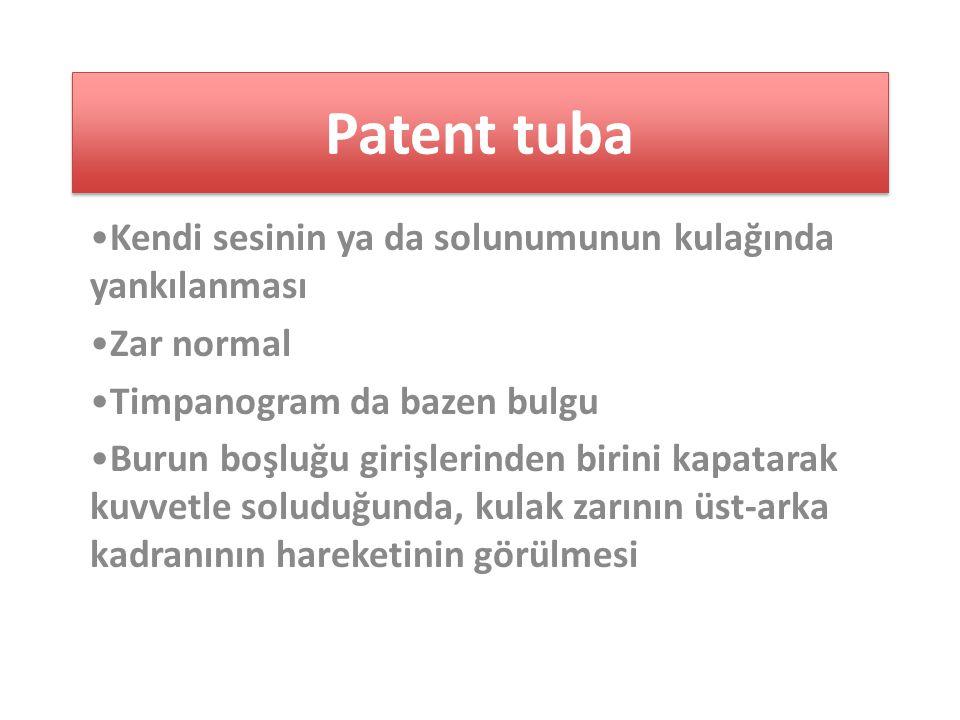 Patent tuba Kendi sesinin ya da solunumunun kulağında yankılanması