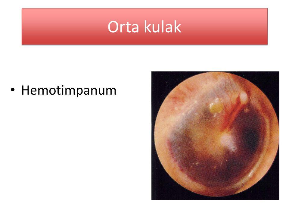 Orta kulak Hemotimpanum