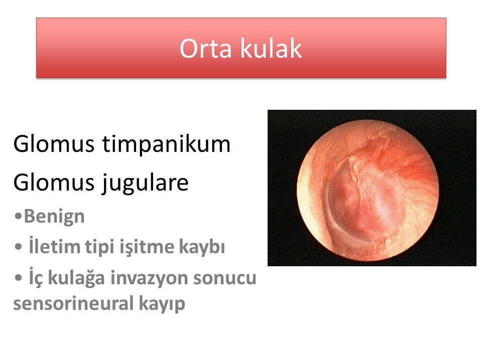 Orta kulak Glomus timpanikum Glomus jugulare Benign