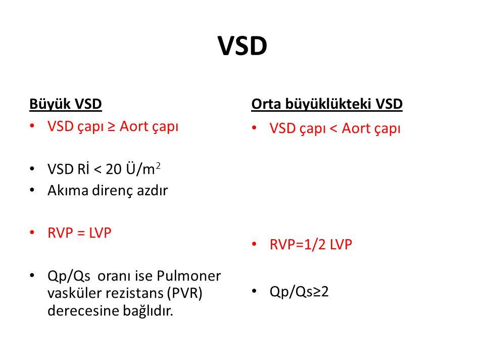 VSD Büyük VSD Orta büyüklükteki VSD VSD çapı ≥ Aort çapı