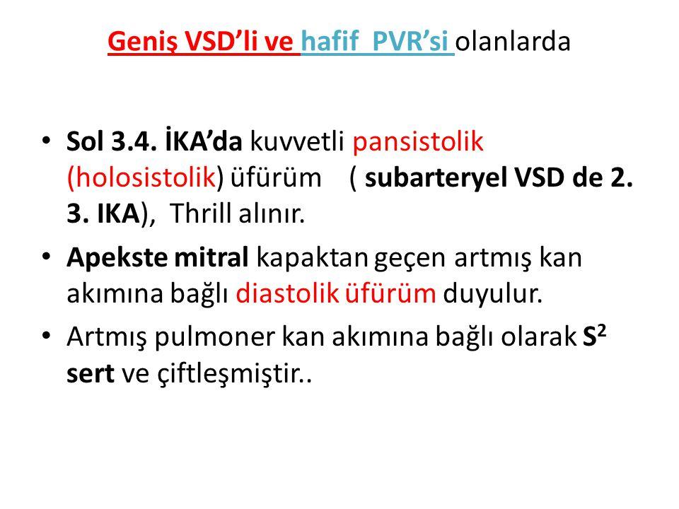 Geniş VSD'li ve hafif PVR'si olanlarda