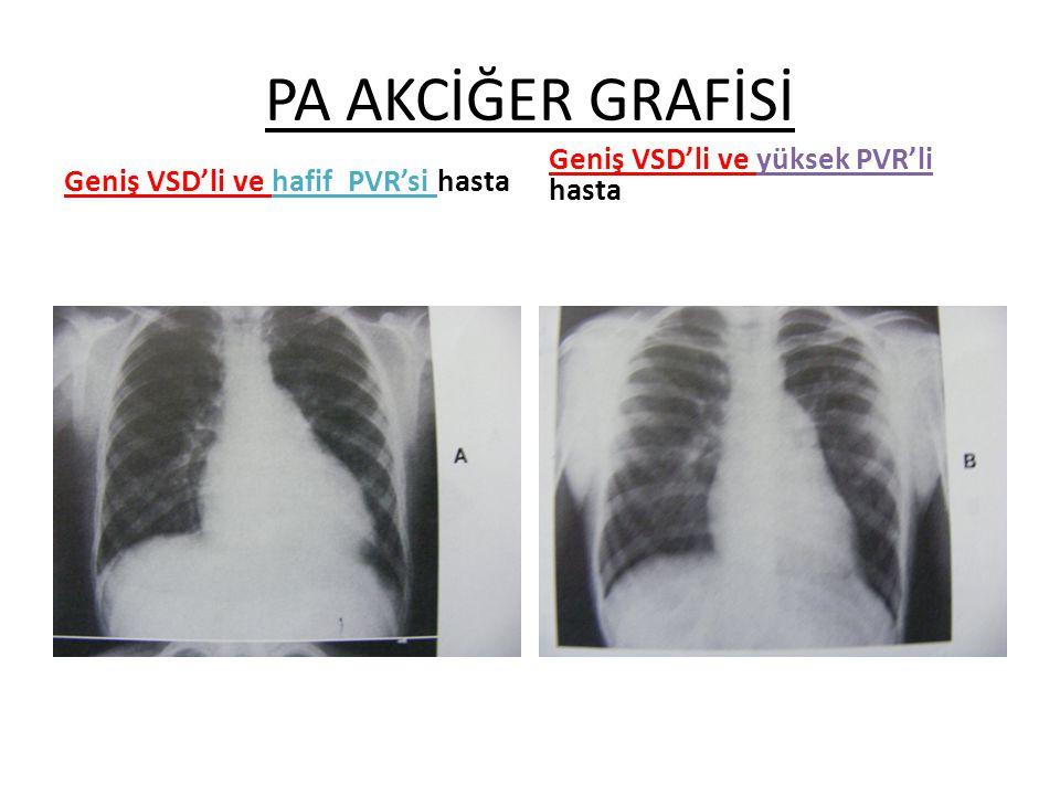 PA AKCİĞER GRAFİSİ Geniş VSD'li ve yüksek PVR'li hasta