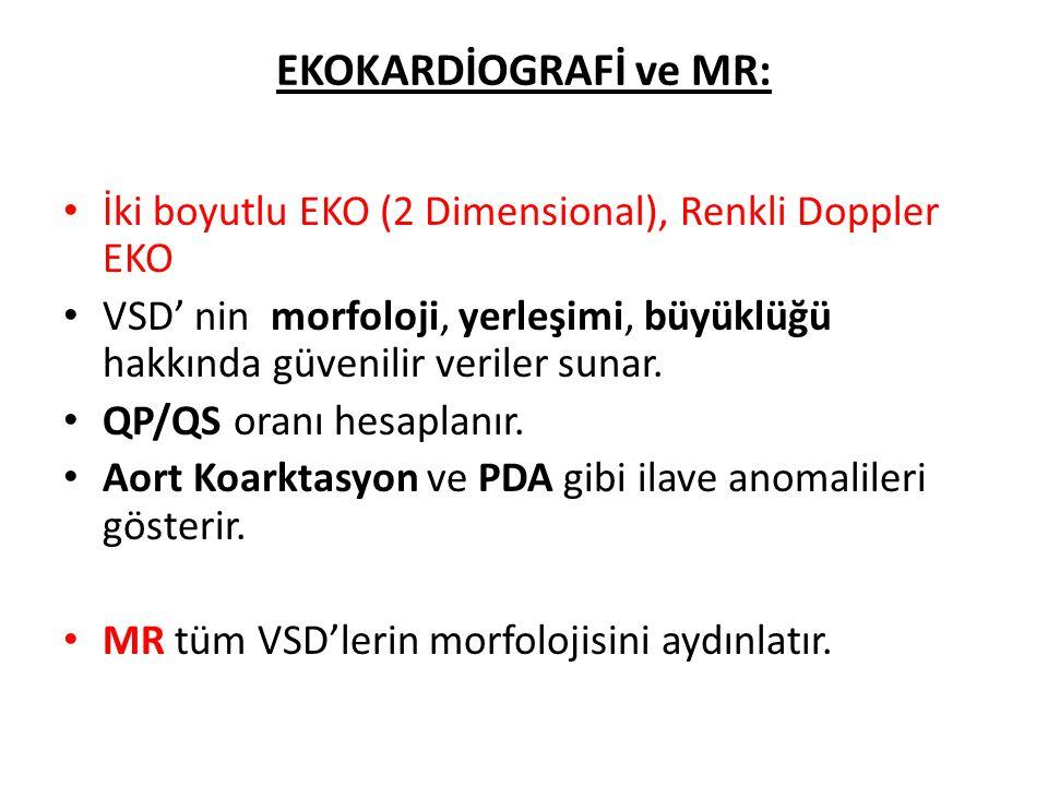 EKOKARDİOGRAFİ ve MR: İki boyutlu EKO (2 Dimensional), Renkli Doppler EKO.