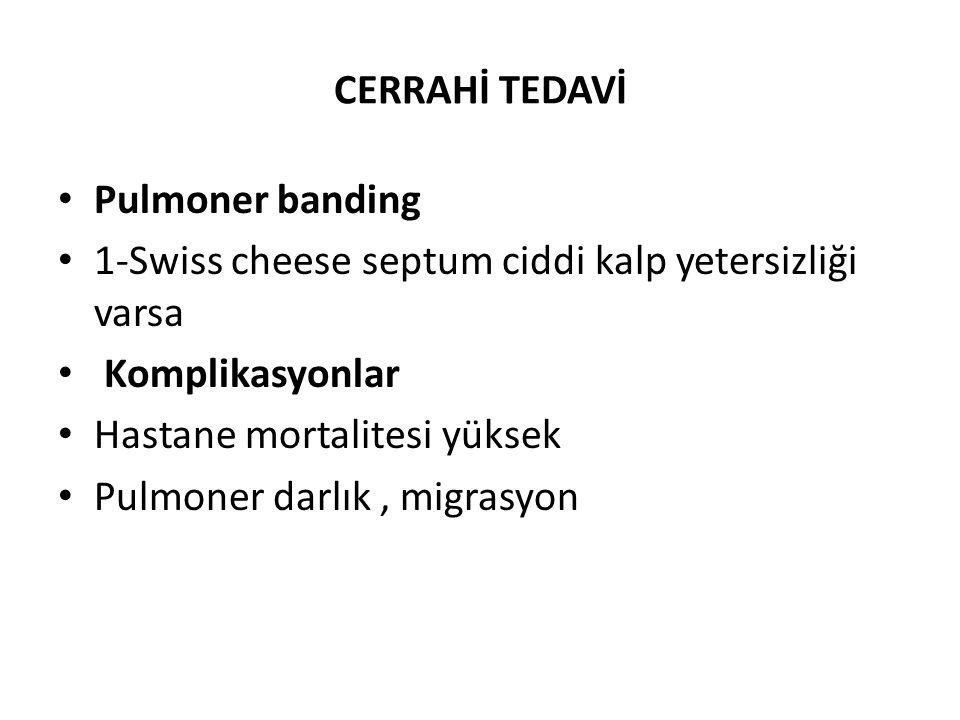CERRAHİ TEDAVİ Pulmoner banding. 1-Swiss cheese septum ciddi kalp yetersizliği varsa. Komplikasyonlar.