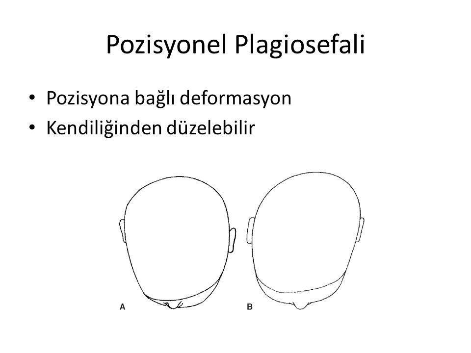 Pozisyonel Plagiosefali