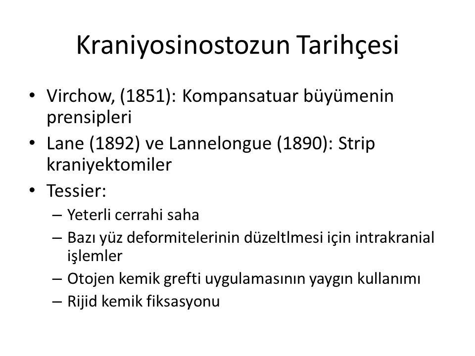 Kraniyosinostozun Tarihçesi