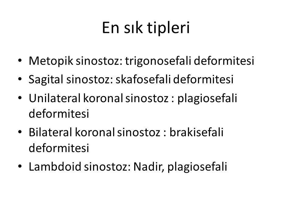 En sık tipleri Metopik sinostoz: trigonosefali deformitesi