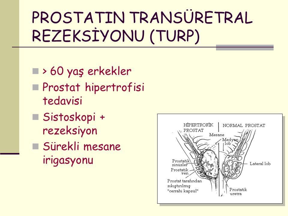 PROSTATIN TRANSÜRETRAL REZEKSİYONU (TURP)