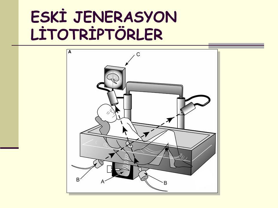 ESKİ JENERASYON LİTOTRİPTÖRLER