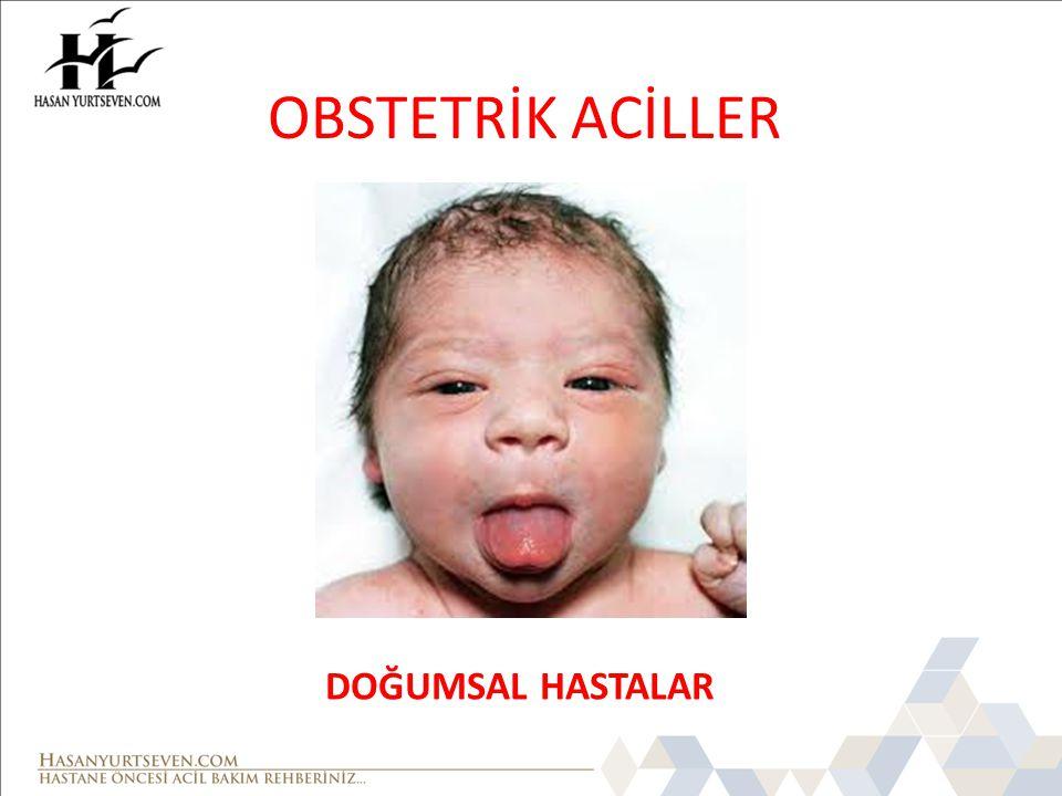 OBSTETRİK ACİLLER DOĞUMSAL HASTALAR