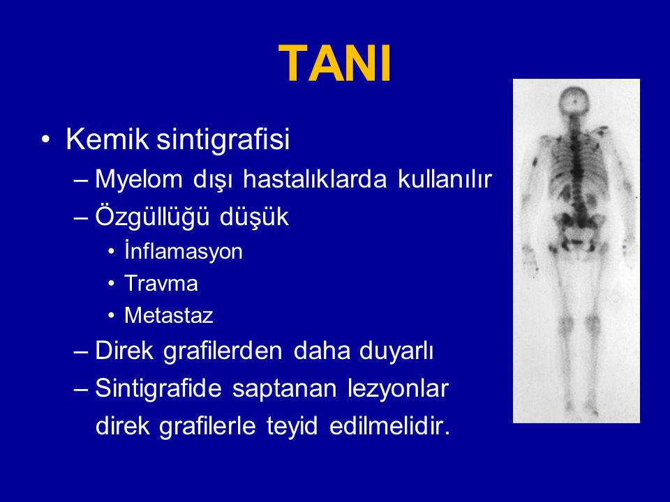 TANI Kemik sintigrafisi Myelom dışı hastalıklarda kullanılır