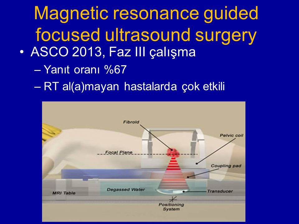 Magnetic resonance guided focused ultrasound surgery