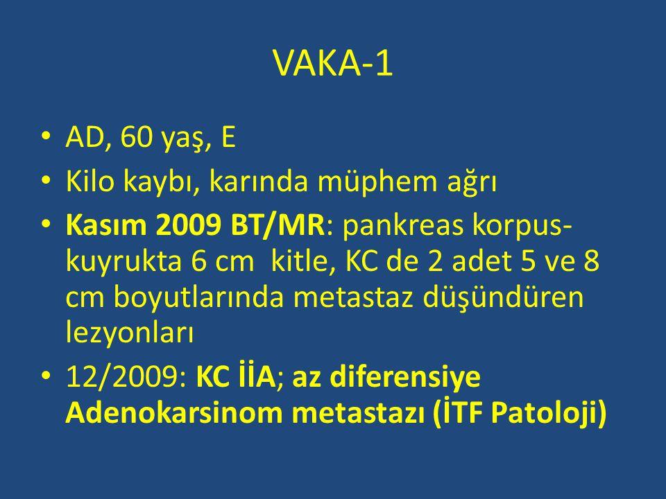 VAKA-1 AD, 60 yaş, E Kilo kaybı, karında müphem ağrı