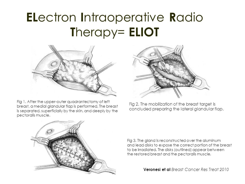 ELectron Intraoperative Radio Therapy= ELIOT