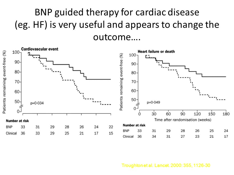 BNP guided therapy for cardiac disease (eg