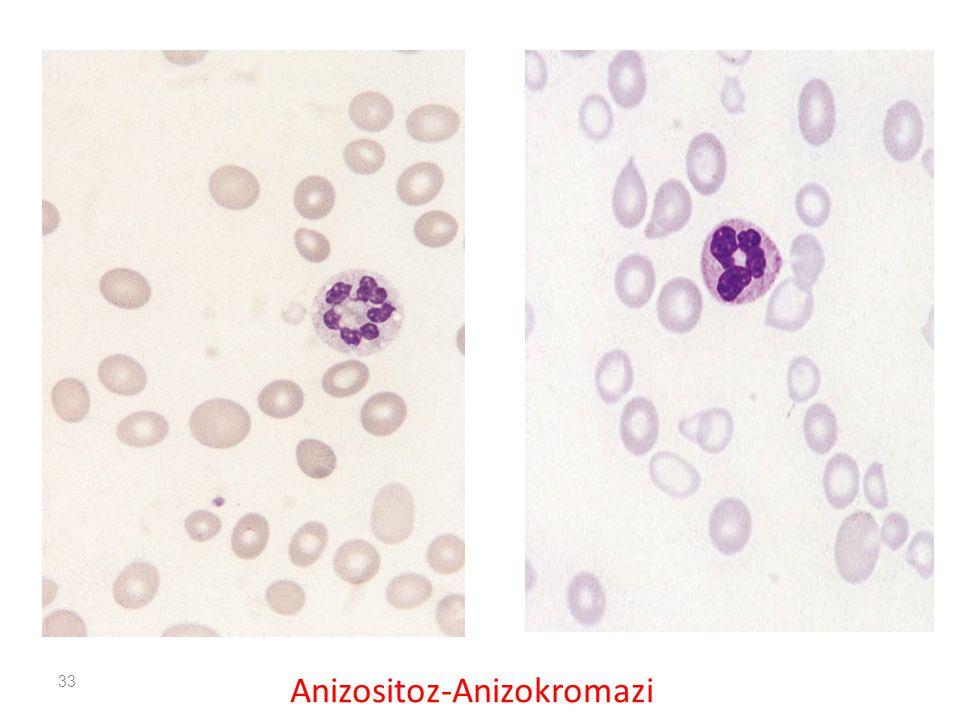 Anizositoz-Anizokromazi