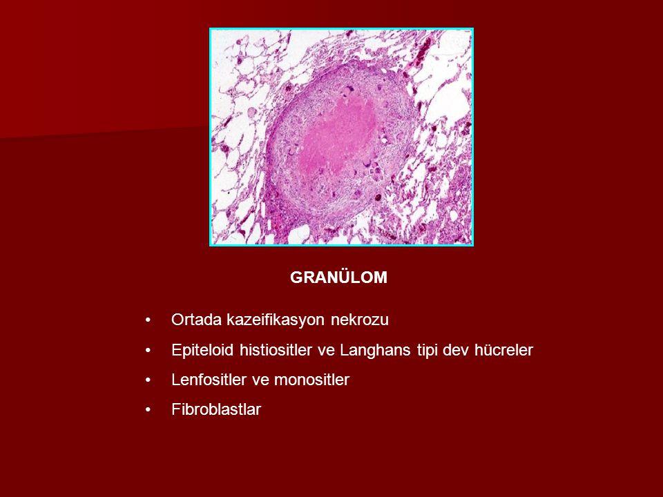 GRANÜLOM Ortada kazeifikasyon nekrozu. Epiteloid histiositler ve Langhans tipi dev hücreler. Lenfositler ve monositler.