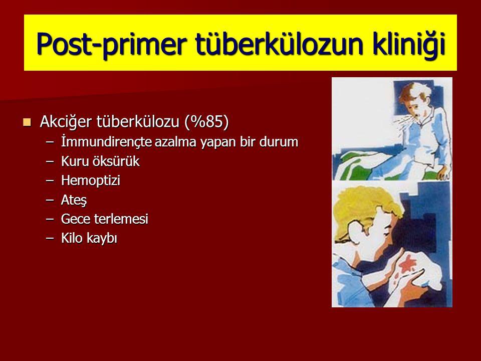 Post-primer tüberkülozun kliniği